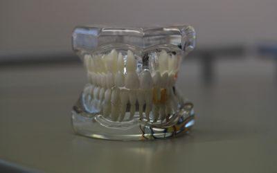 Zła metoda odżywiania się to większe niedostatki w ustach a także ich utratę